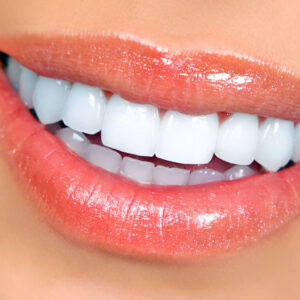 Cosmetic Dentistry, Teeth Whitening