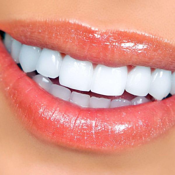 Cosmetic Dentistry, Teeth Whitening