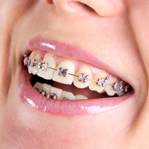 The Basin's Premier Orthodontic Providers
