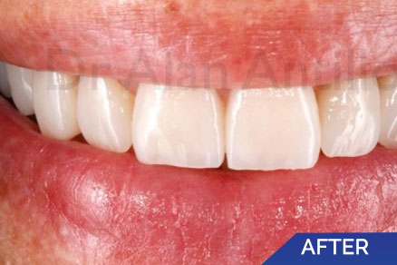 Guatemala Dental Gallery, Smile Gallery, Before and After