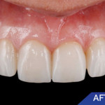 Veneers Image After