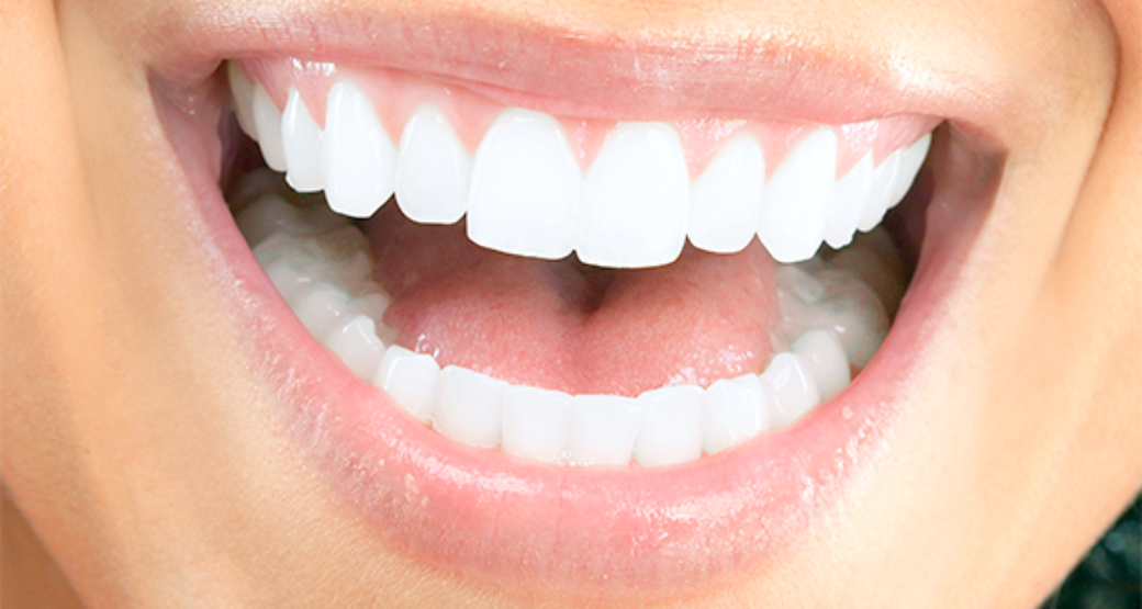 What are Dental Lumineers?